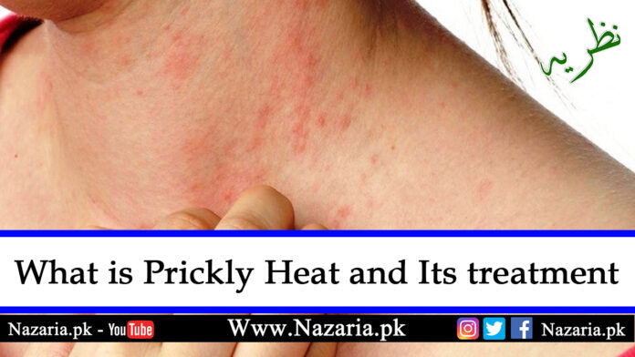 What is prickly heat and its Treatment, Nazaria.pk